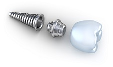 Dental Implants in White Bear Lake, MN